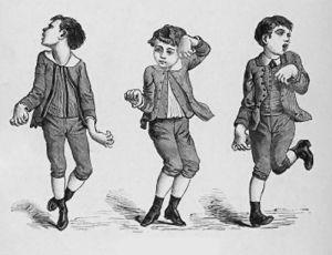 симптомы хореи у детей