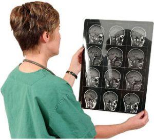 анализ снимка МРТ