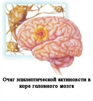 активность эпилепсии в мозгу