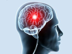 трамы мозга