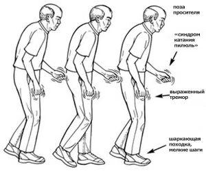 симптомв Паркинсона