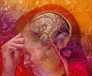 спазм мозга