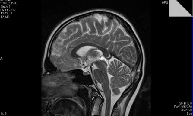 Киста конъюнктивы на глазу : причины, лечение слезной железы и роговицы