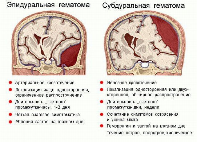 Трепанация черепа последствия после операции