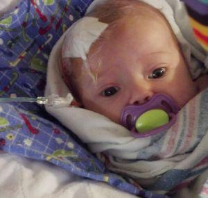 операция у малыша