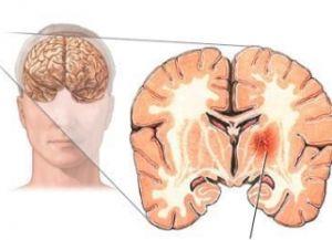 место кровоизлияние в мозг