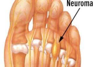 неврома Мортона