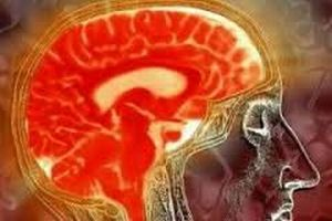 мозг с водянкой мозга
