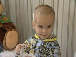 Ребенок с водянкой мозга