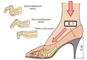 проблемы от ношения обуви с каблуками