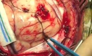операция по удалению кисты