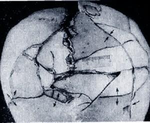 оскольчатый перелом черепа