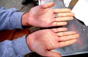 проблемы с сосудами рук
