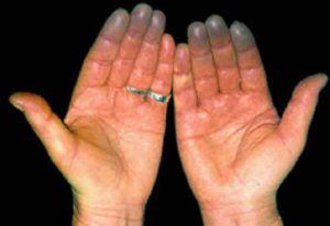 синдром холодных рук