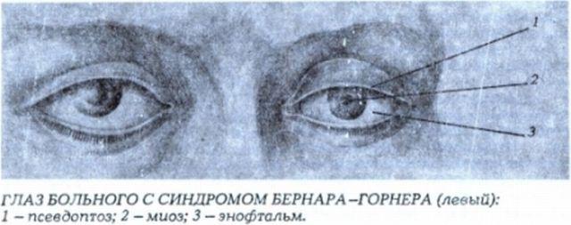 Симптомы синдрома бернара горнера