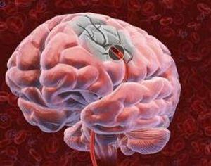Локация зон в мозгу