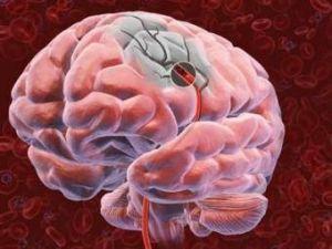 нарушения мозга