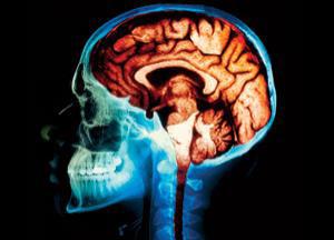 нарушения в работе мозжечка