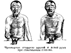 Гипометрия