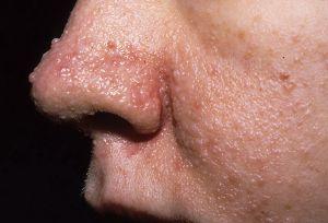 Туберозный склероз у детей: симптомы