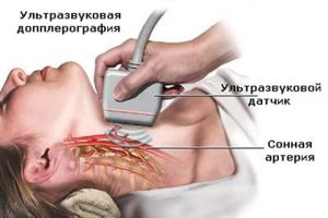допплерография головного мозга