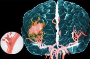 инсульт геморрагический