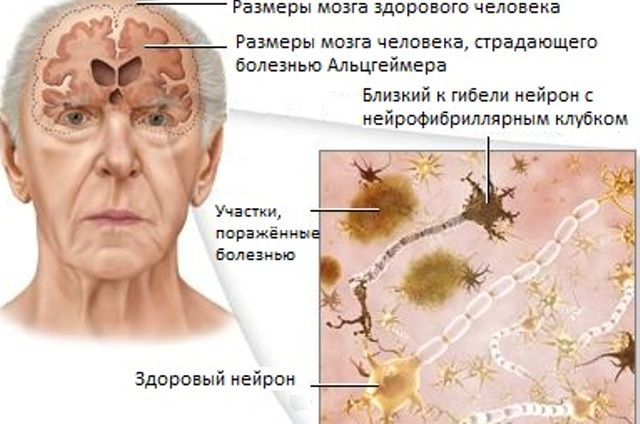 поражение Альцгеймером