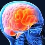 джексоновская эпилепсия