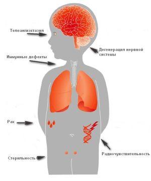 симптомы Луи Бар