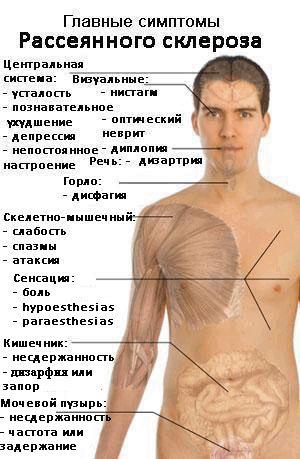 Сколько живут люди с рассеянным склерозом