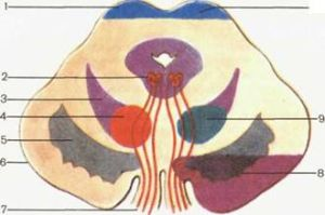 Вертигогемиплегический синдром