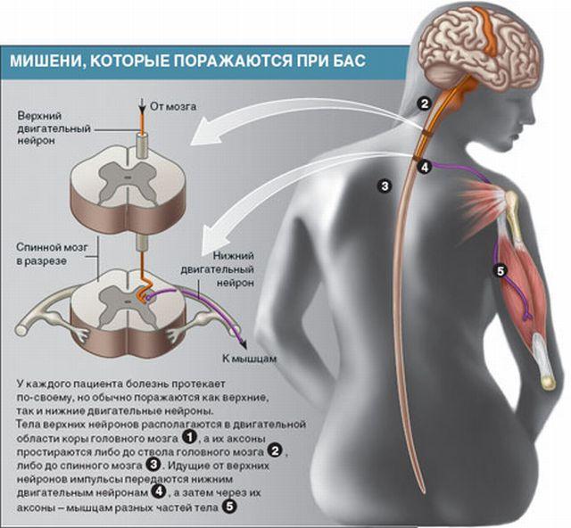 поражение нервной системы амиотрофическом склерозе