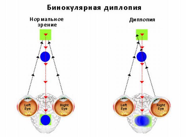 Бинокулярная диплопия