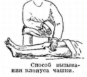 Клонус коленной чашечки