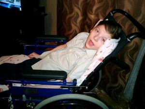 проявления церебрального паралича