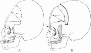 череп до и после операции