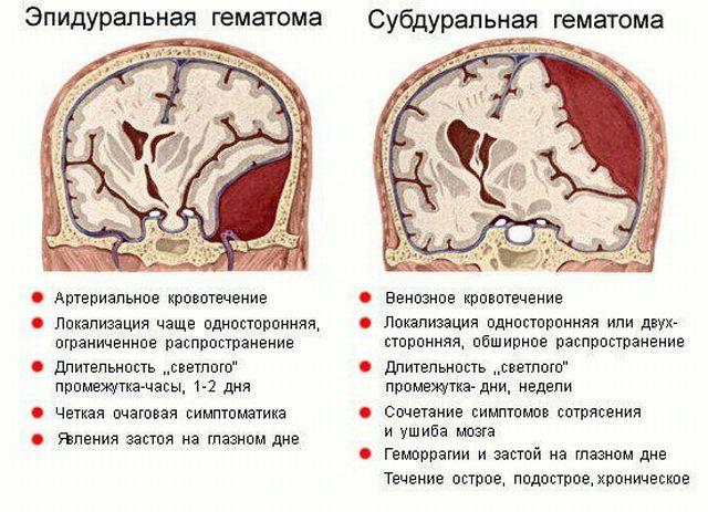 отличие гематом мозга