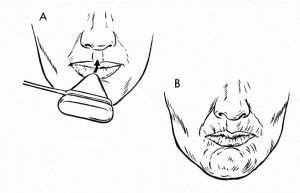 хоботковый рефлекс у взрослых