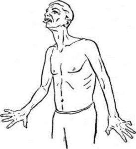 Заболевание Генингтона