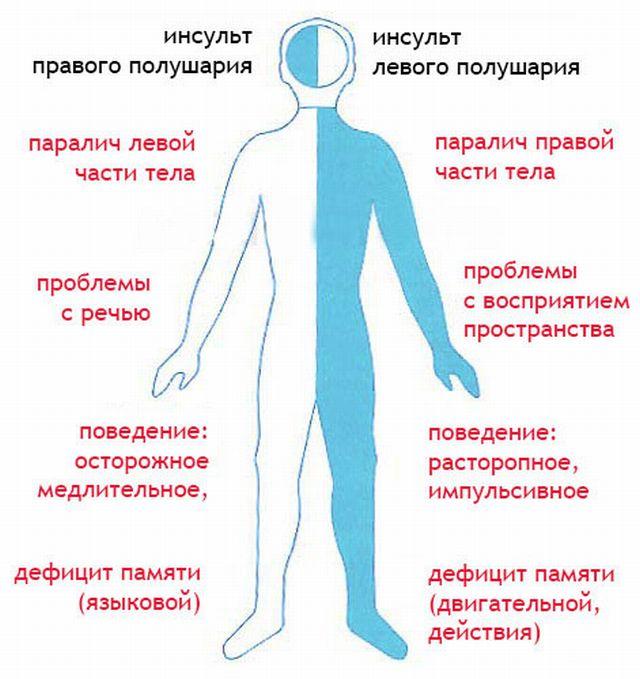 инсульт правой и левой стороны мозга