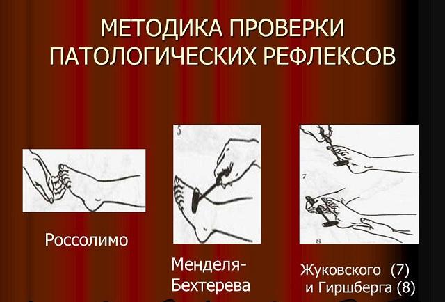 Проверка патологических рефлексов
