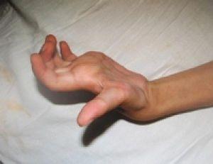 когтистая кисть