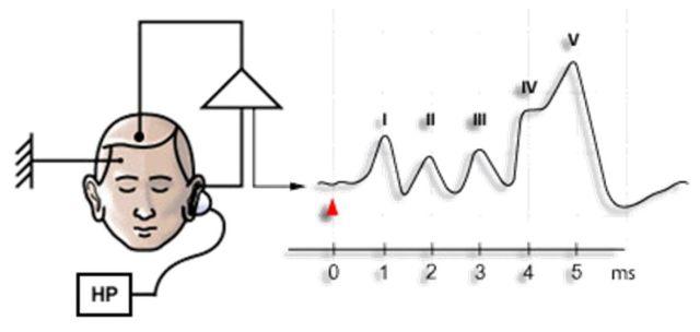 Интерпритация слуховых вызванных потенциалов