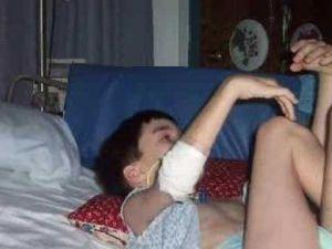 синдром Ленннокса-Гасто