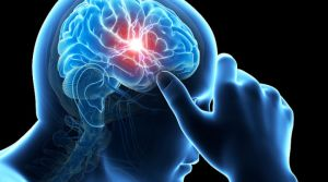 Моз при ишемии