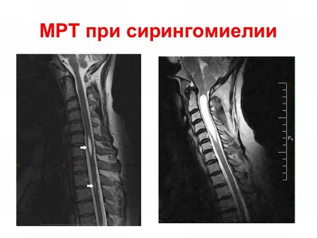 МРТ при сирингомиелии