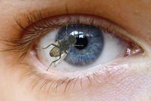 насекомое в глазу