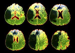 зоны поражения при обширном инсульте