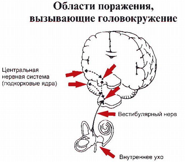 области поражения при головокружении