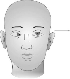 парез лица